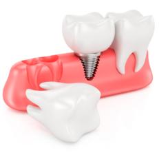 implantes dentales en bilbao