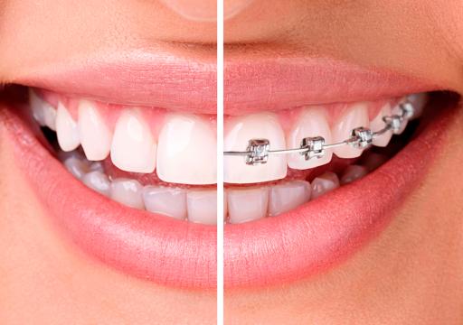 Ortodoncia en Grupo Llona