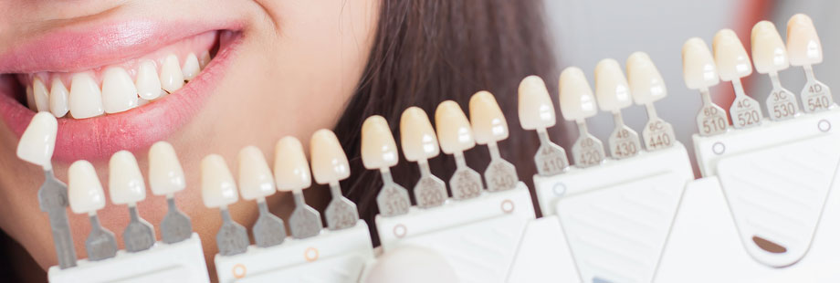 Blanqueamiento dental matices y tonos