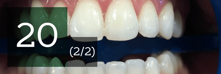 20 preguntas sobre el blanqueamiento de dientes