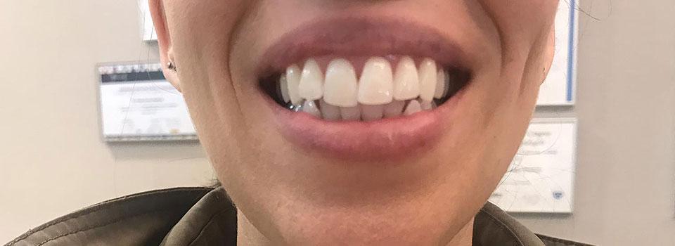Estética dental en Grupo Llona