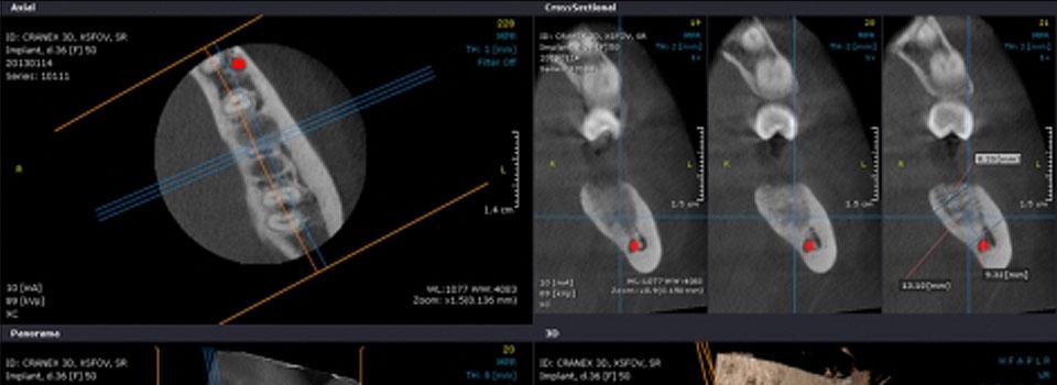 Cirugía guiada de implantes en Grupo Llona