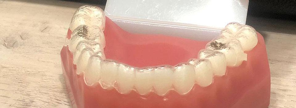 Ortodoncia invisible (prototipo)